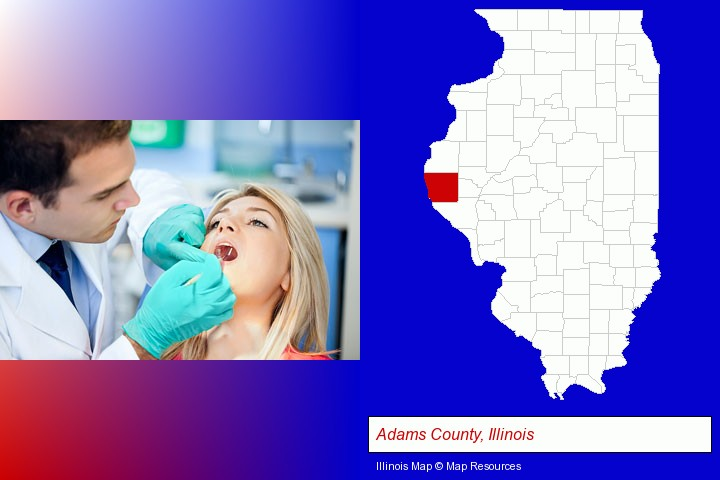 a dentist examining teeth; Adams County, Illinois highlighted in red on a map