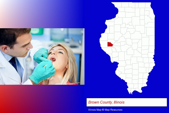 a dentist examining teeth; Brown County, Illinois highlighted in red on a map