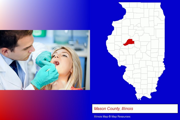 a dentist examining teeth; Mason County, Illinois highlighted in red on a map