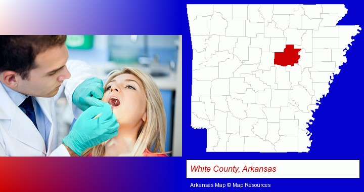 a dentist examining teeth; White County, Arkansas highlighted in red on a map